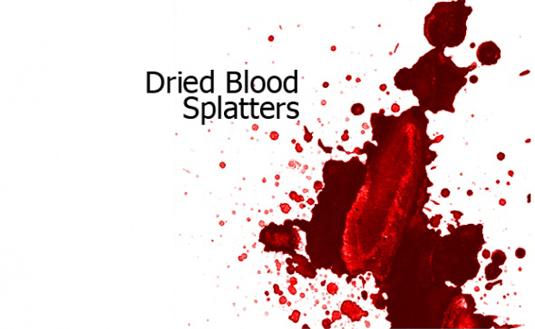 7Dried blood splatters